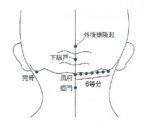 頸叢刺の治療方法