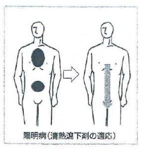 陽明病(清熱瀉下剤の適応)
