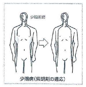 少陽病(柴胡剤の適応)
