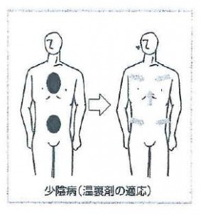 少陰病(温裏剤の適応)