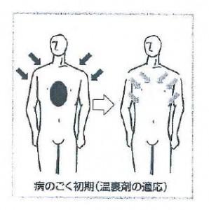 病のごく初期(温裏剤の適応)